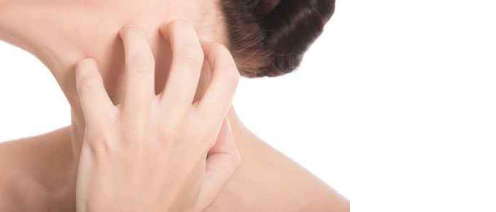 かゆみ、肌荒れ、副作用 アレルギーは大丈夫?
